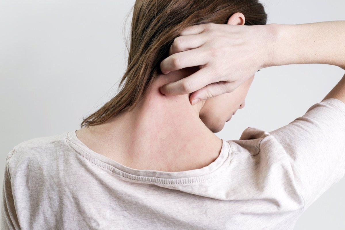 Expertos en Medicina Preventiva ponen de relieve la importancia de la vacuna frente al herpes zóster