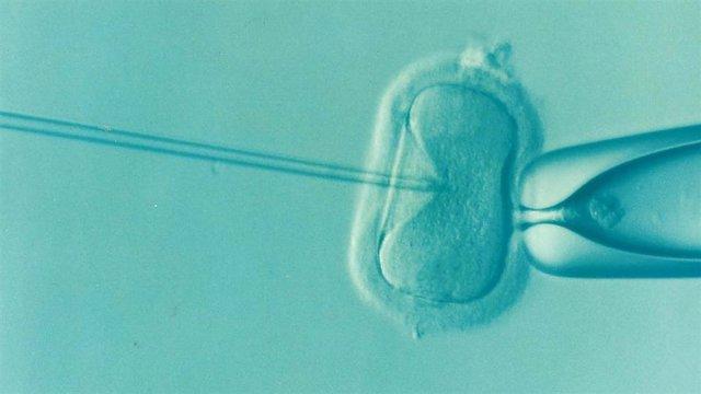 Archivo - Fecundación in vitro