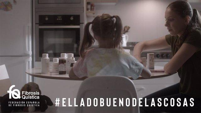 """Archivo - La Federación Española de Fibrosis Quística presenta una campaña para mostrar """"El lado bueno de las cosas"""" en el Día Mundial de la enfermedad"""