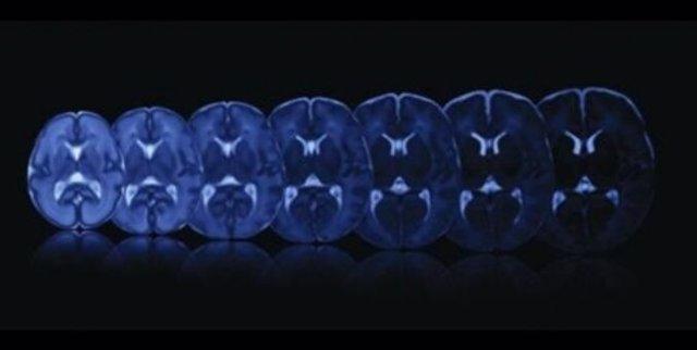 Ilustración del crecimiento cerebral en las últimas semanas de gestación