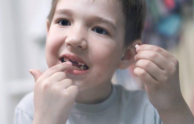 Archivo - Dientes de leche, niño con diente en la mano
