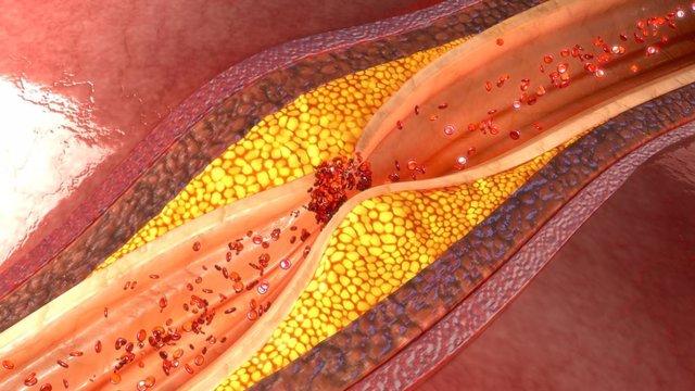 Archivo - Aterosclerosis, ateroma, arteria obstruida