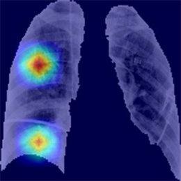 Archivo - Resultados de segmentación automática de los pulmones e identificación de regiones de interés en paciente con covid-19.