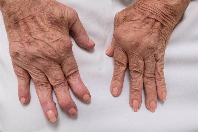 Archivo - La inflamación persistente provocada por la artritis reumatoide puede acabar dañando los huesos, ligamentos y tendones que hay alrededor provocar una deformidad progresiva de las articulaciones