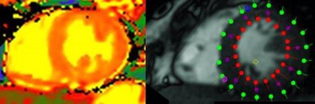 Corte axial del corazón con vista de los ventrículos derecho e izquierdo. Izqda: técnica de mapping en la que se aprecia la sangre en amarillo y la inflamación en naranja. Dcha: técnica de feature tracking que muestra la contractilidad cardiaca.